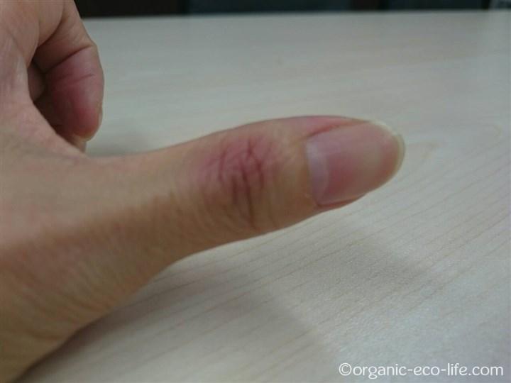 腫れた親指